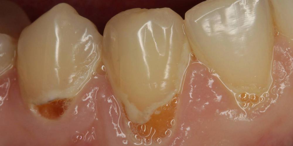 Лечение кариеса шейки зуба