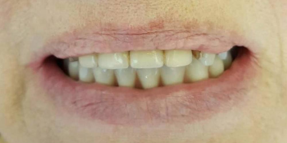 Протезирование нижней челюсти на 4 имплантатах