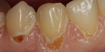 Лечение кариеса шейки зуба фото до лечения