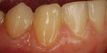 Лечение кариеса шейки зуба фото после лечения