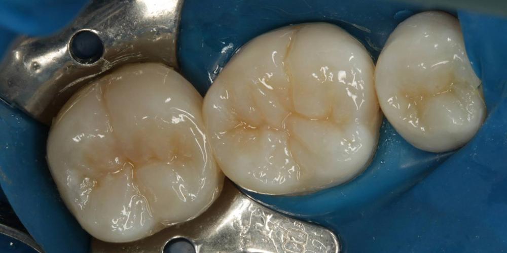 Результат. Лечение кариеса и реставрация жевательных зубов