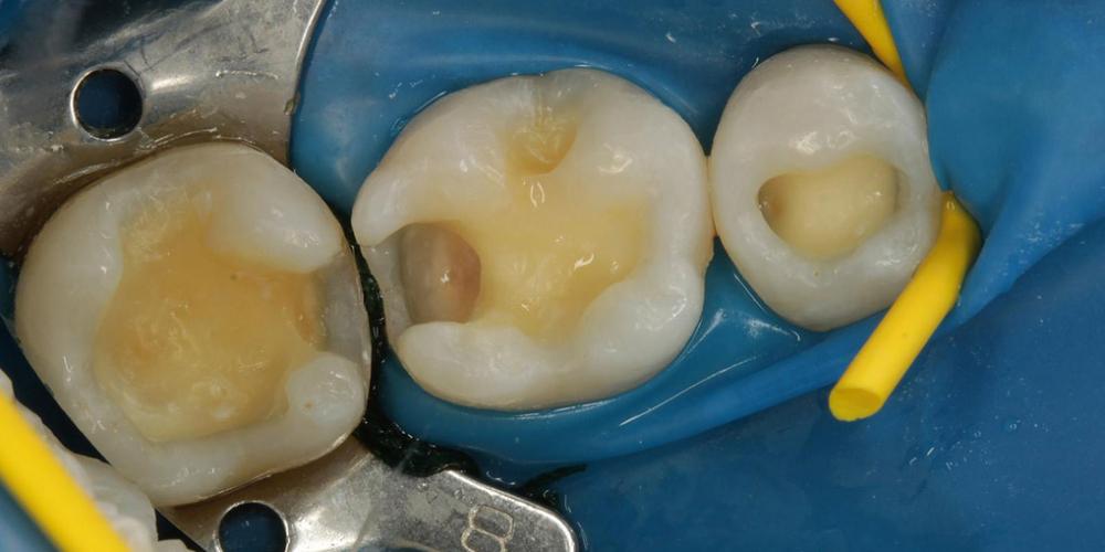 Фото после препарирования. Лечение кариеса и реставрация жевательных зубов