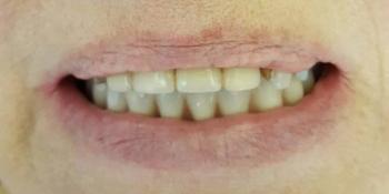 Протезирование нижней челюсти на 4 имплантатах фото после лечения